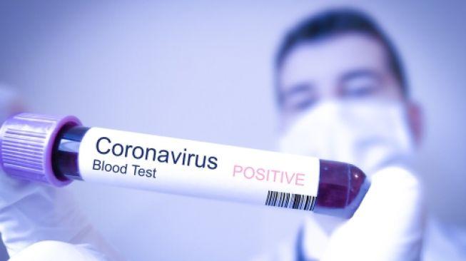 Gawat, Covid-19 Diperkirakan akan Jadi Penyakit Musiman